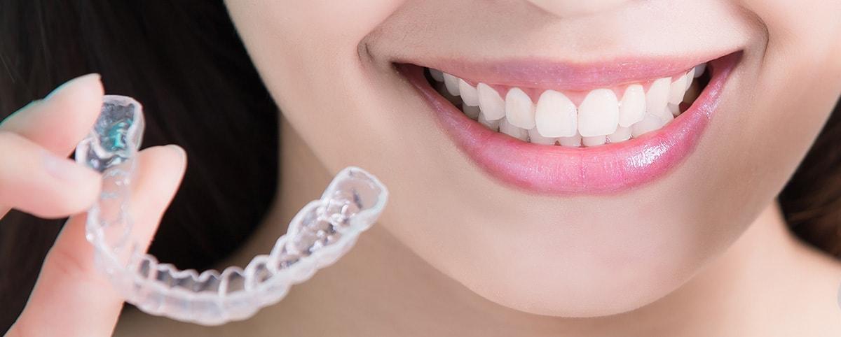 apparecchio denti trasparente