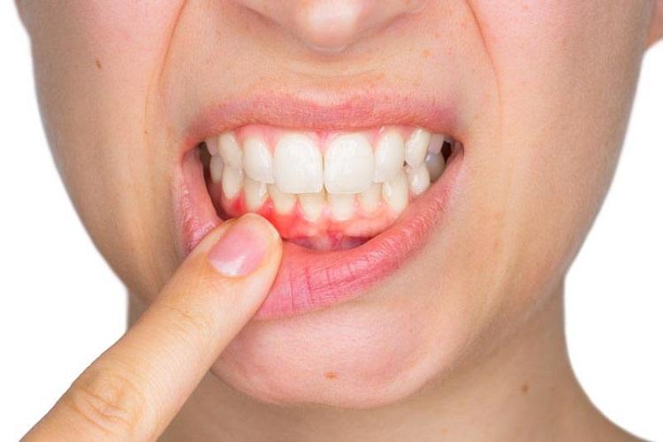 Cura delle Gengive (Parodontologia)