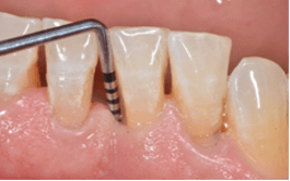 Tasca parodontale: Sondaggio patologico