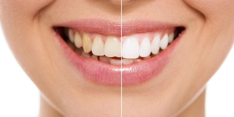 sbiancamento denti dentisti agropoli