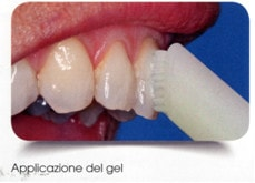 sbiancamento denti stick