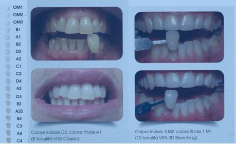 trattamento sbiancante 10 minuti tonalità scura