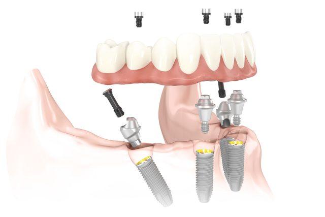 all on 4 implantologia dentale