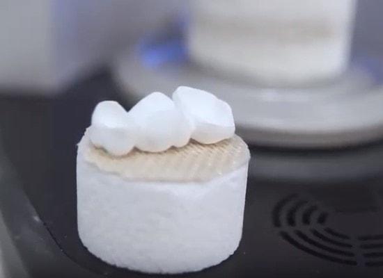 Protesi dentarie mobili