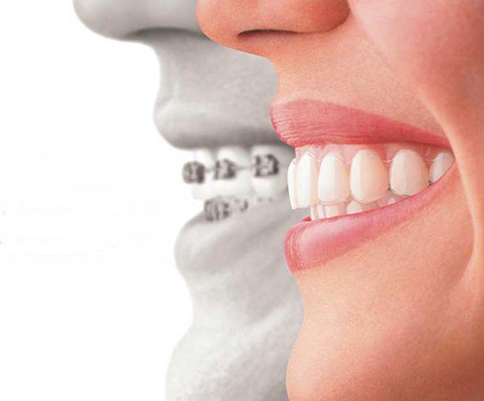apparecchio invisibile per denti storti