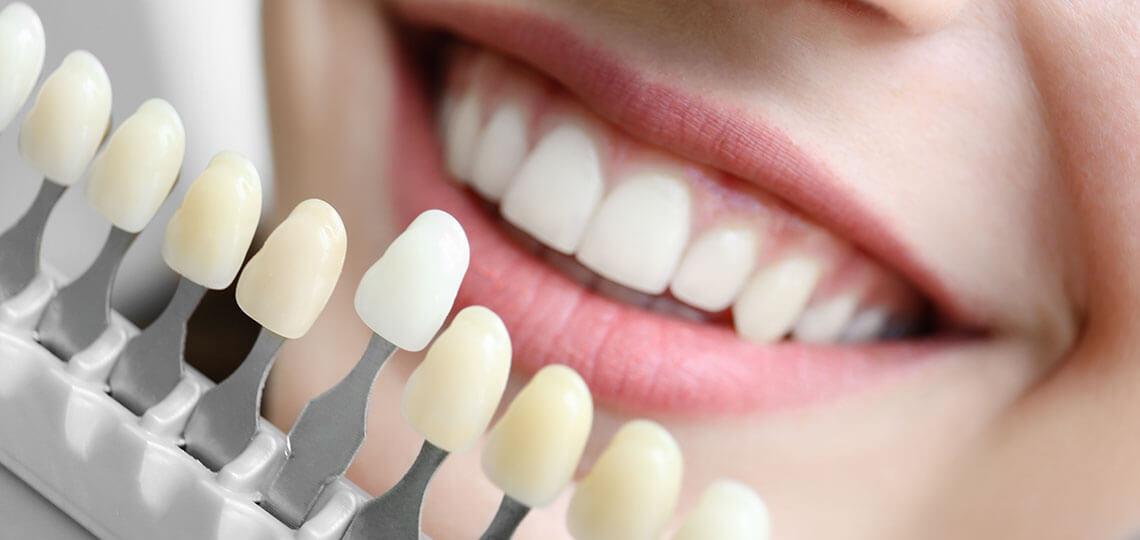 faccette dentali costo