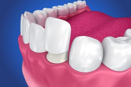 faccetta dentale